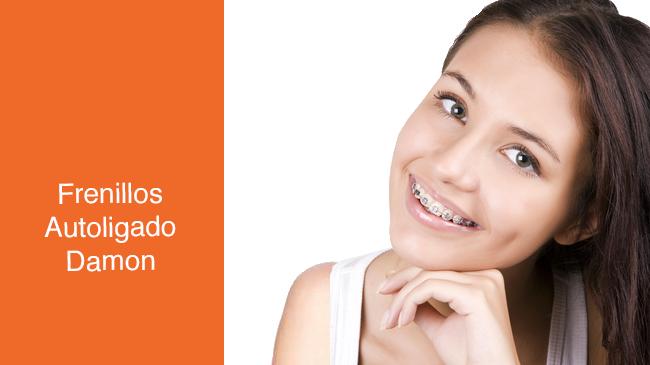 ortodoncia autoligado Costa Rica rudin